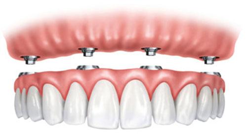 Implants dentaires pour appareil