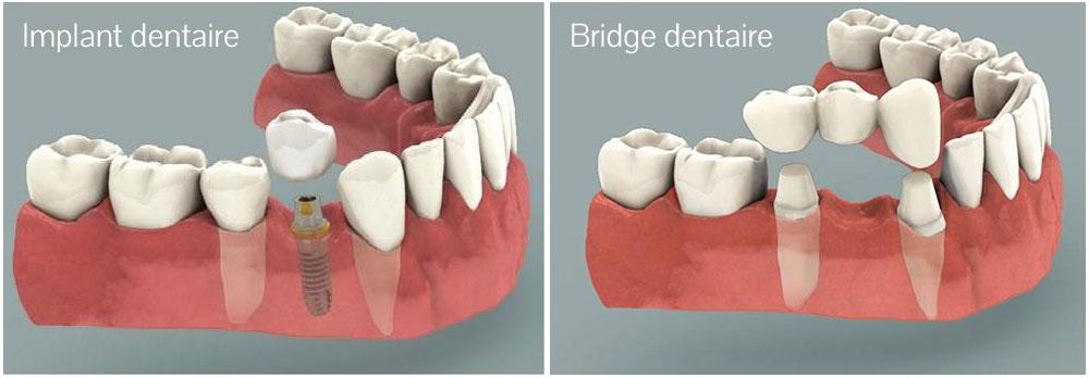 Différence implant / bridge